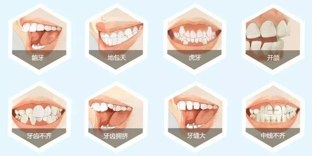 粉丝福利来袭!上海3店通用!59.9元速抢上海鼎植口腔全口超声波洁牙套餐~限量100套!周末节假日通用~减轻牙龈炎、预防牙周疾病就来鼎植口腔医院~有效期至年底!